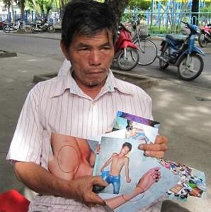 Ông Lê Văn Chư cầm trên tay những bức ảnh có những dấu vết con ông bị đánh. Ảnh: VIẾT LONG