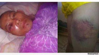 Các bức ảnh chụp hai nạn nhân bị đánh nặng nhất cho thấy vùng mắt sưng húp cũng như tay, chân bị thâm tím. Ông Đậu Hoàng Anh (trái) và chân của ông Đào Ngọc Cường bị đánh bầm dập. (ảnh chụp từ trang web VnExpress).