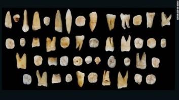 47 chiếc răng cổ vừa được tìm thấy ở huyện Đạo thuộc tỉnh Hồ Nam (Trung Quốc). ảnh: CNN