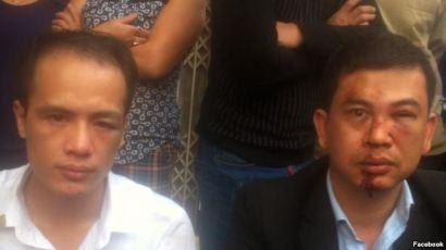 Luật sư Trần Thu Nam (phải) và Luật sư Lê Văn Luân sau khi bị hành hung. Vụ việc xảy ra hôm 3/11 khi luật sư Nam và Luân tới nhà bà Đỗ Thị Mai, mẹ của thiếu niên Đỗ Đăng Dư, bị tử vong trong lúc bị giam giữ. Nguồn ảnh: FB