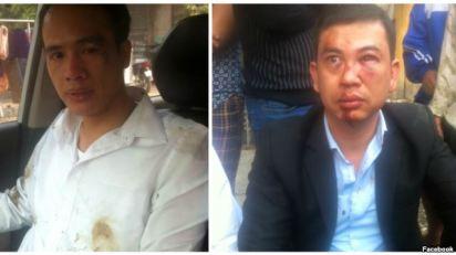 Luật sư Trần Thu Nam (phải) và Luật sư Lê Văn Luân sau khi bị hành hung. Vụ việc xảy ra hôm 3/11 khi luật sư Nam và Luân tới nhà bà Đỗ Thị Mai, mẹ của thiếu niên Đỗ Đăng Dư, người đã bị tử vong trong lúc bị giam giữ. Photo: FB