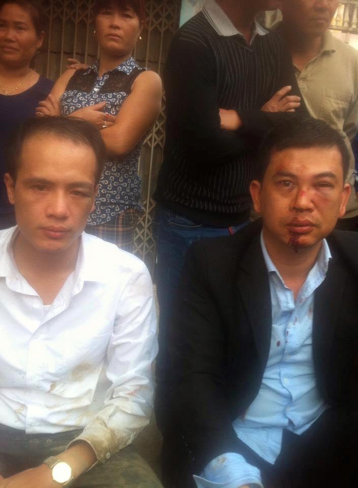 Hai LS bị hành hung. Nguồn: FB Trần Vũ Hải