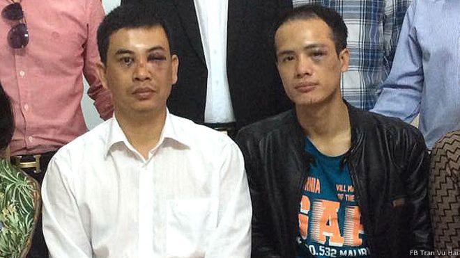 Liên đoàn Luật sư Việt Nam vừa có công văn đề nghị khởi tố vụ án hai luật sư Trần Thu Nam (trái) và Lê Văn Luân bị hành hung hôm 3/11/2015. Ảnh: FB Tran Vu Hai