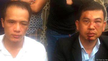 Luật sư Lê Văn Luân (trái) và LS Trần Thu Nam bị đánh rất dã man. Ảnh: baophapluat.vn