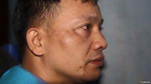 Hôm 6/12/2015 luật sư Nguyễn Văn Đài bị côn đồ hành hung gây thương tích trên mặt. Nguồn ảnh: FB