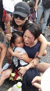 Chị Hoàng Mỹ Uyên và con gái bị đánh. Nguồn: internet