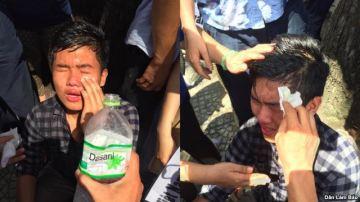 Một bạn trẻ bị xịt hơi cay vào mắt. Ảnh: DLB
