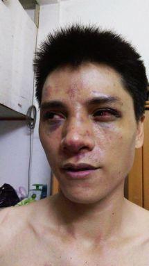 Một người biểu tình ở Sài Gòn hôm 8/5/2015 bị công an đánh. Nguồn: FB Ngô Thị Kim Cúc.