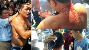 Những người biểu tình ngày 1/5/2016 bị đánh. Ảnh: internet