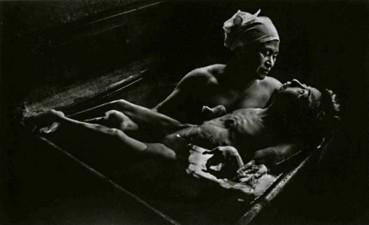 Bà mẹ của Uemoko Tomura, bênh nhân Minamata, đang tắm cho con. Ảnh: Eugene Smith (3)