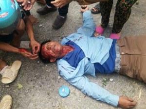 Một giáo dân Cồn Sẻ bị công an đánh trong cuộc biểu tình chống Formosa ngày 7.7.2016. Ảnh: FB Ðậu Văn Dương