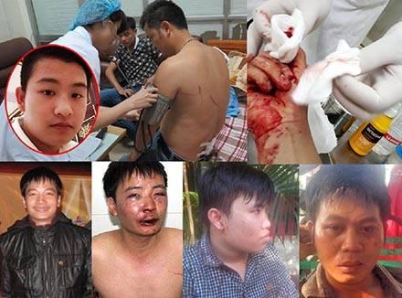 Các nhà báo bị công an hành hung. Nguồn: FB Hồ Bất Khuất/ internet