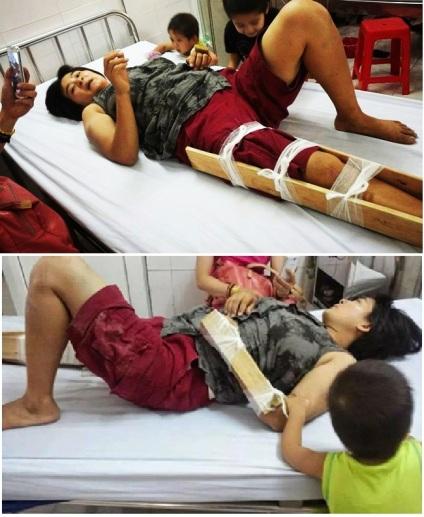 Cô Trần Thị Nga đã từng bị công an đánh gãy tay, chân trước mặt 2 con nhỏ. Ảnh: internet