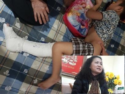 Cô giáo Tạ Thị Bích Ngọc, hiệu trưởng trường tiểu học Nam Trung Yên và em Trần Chí Kiên bị đụng gãy chân. Ảnh: internet